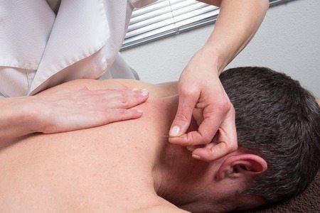 Akupunktur ist eine der Heilmethoden von TCM